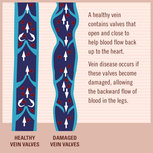 Healthy and Damaged Vein Valves